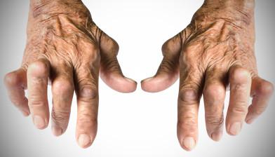 Rimedi per i Reumatismi